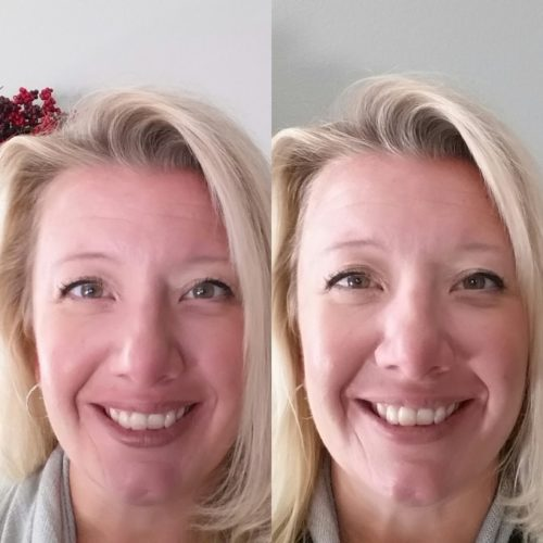 Crest Whitestrips 1 Hour Express Teeth Whitening Before and After 1 Use