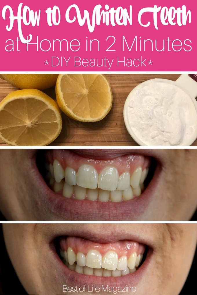How To Whiten Your Teeth At Home The Best Of Life Magazine