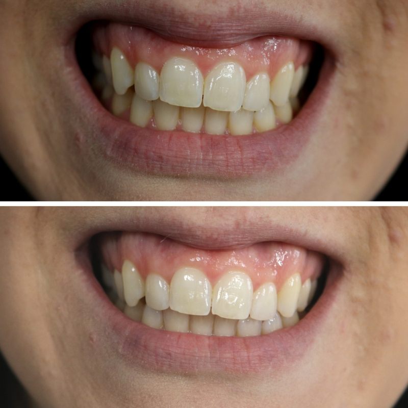 It can be tricky to figure out what works or how to whiten your teeth but this method is simple, just 2 ingredients! Instant results after just 2 minutes! How to Whitten Teeth | How to Get White Teeth | How to Properly Brush Your Teeth | How to Get a Better Smile