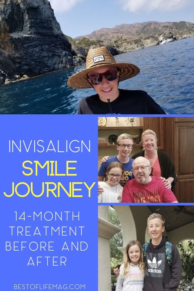 Take a look at how our teen's smile changed in this Invisalign® Smile Journey video!  Not only did his smile improve, but his self-confidence, too! Teen Parenting | Invisalign Before and After | Beauty Treatments | Does Invisalign Work | Invisalign Tips via @amybarseghian